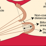 Mitral Valve Prolapse – The Definitive Guide