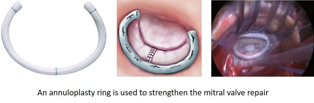 annuloplasty-ring