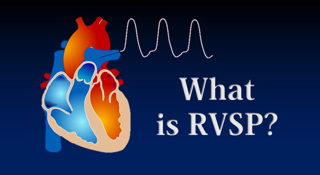 RVSP – Right Ventricular Systolic Pressure • MyHeart