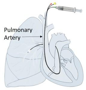 right-ventricular-pressure