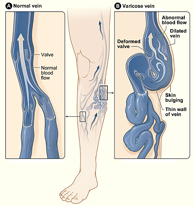 The illustration shows how a varicose vein forms in a leg. Figure A shows a normal vein with a working valve and normal blood flow. Figure B shows a varicose vein with a deformed valve, abnormal blood flow, and thin, stretched walls. The middle image shows where varicose veins might appear in a leg.