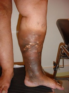 varicose veins with skin changes