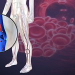 Symptoms of Blood Clot in Leg