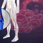 Symptoms of Blood Clot in Leg