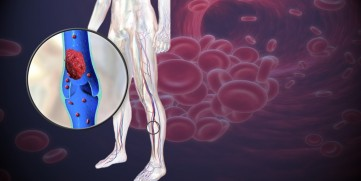blood clot in leg