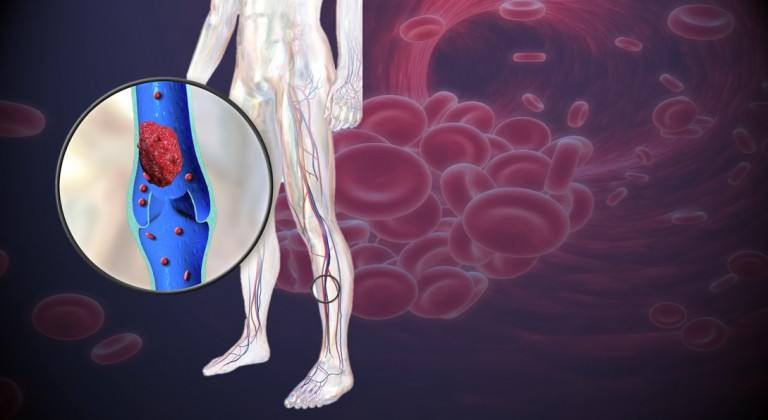 blood clot in leg