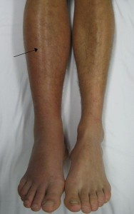 blood clot right leg