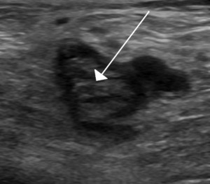 blood clot on ultrasound