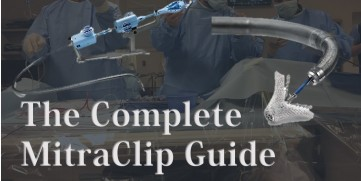 How to do the MitraClip Procedure – A Complete Guide