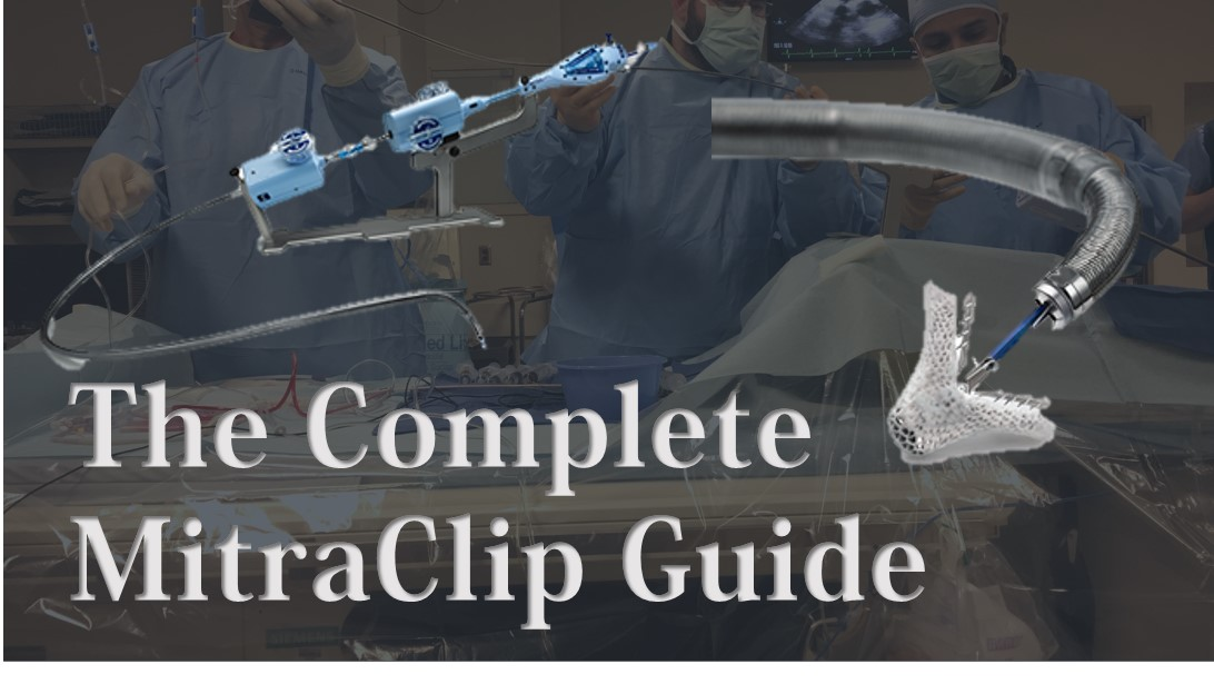 complete mitraclip guide
