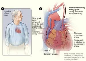 coronary artery bypass grafts