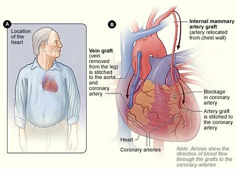 how long does heart bypass surgery last myheart