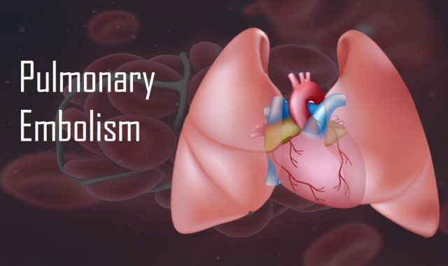 Pulmonary Embolism – The Killer Clot in the Lungs