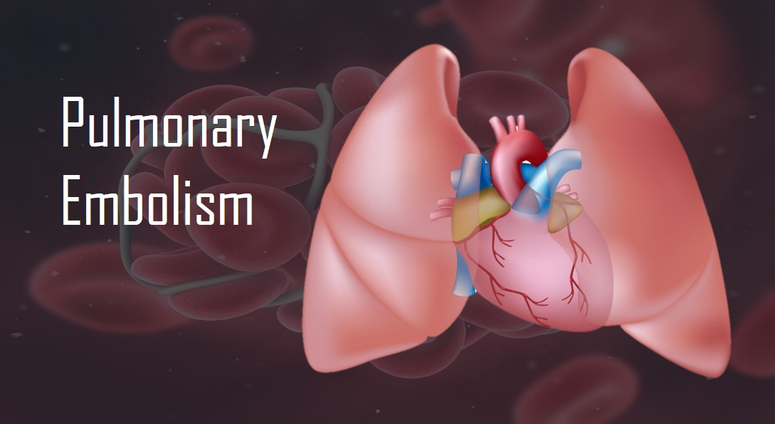 Pulmonary Embolism - The Killer Clot in the Lungs • MyHeart