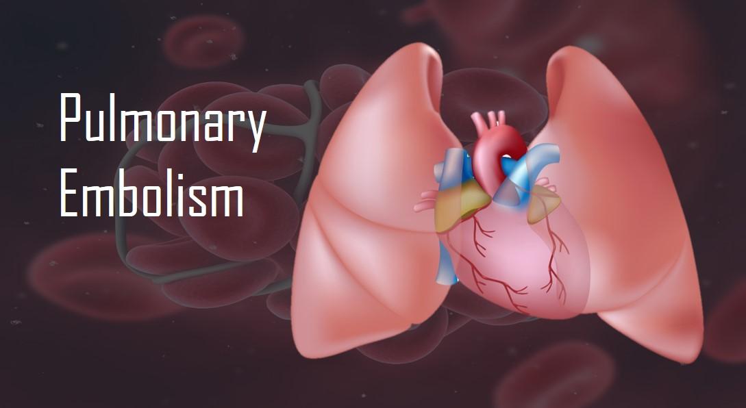 pulmonary-embolism