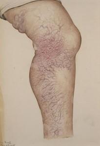 spider and varicose veins