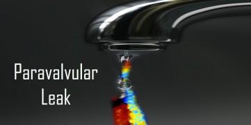 paravalvular leak