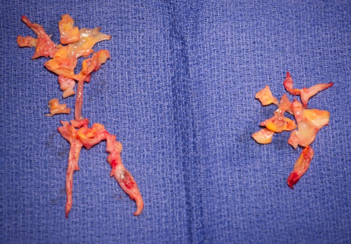 Patient 1: thrombus removed during pulmonary endarterectomy.