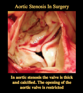 aortic stenosis a tight aortic valve in surgery