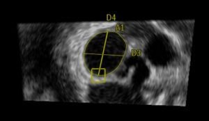 3D mitral annulus measurements