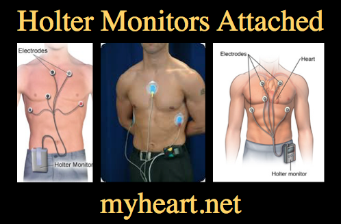 Holter monitor image
