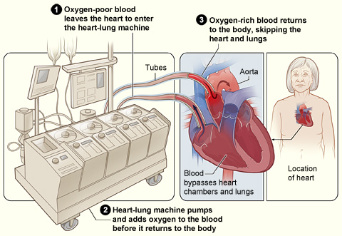 The heart lung bypass machine.