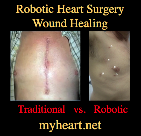 robotic-heart-surgery-wound-healing