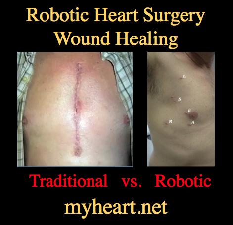 robotic-heart-surgery-wound-healing