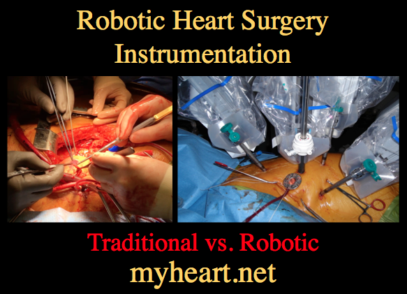 robotic-heart-surgery-instrumentation