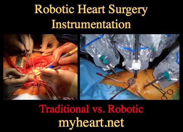 robotic-heart-surgery-instrumentation