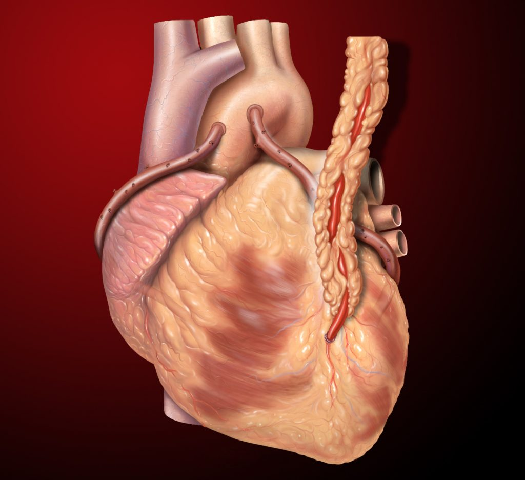 Coronary artery bypass grafts; three grafts are depicted here, a left internal mammary artery (LIMA) to left anterior descending (LAD) and two saphenous vein grafts - one to the right coronary artery (RCA) system and one to the obtuse marginal (OM) system. The LIMA graft is surrounded by yellow fatty tissue in the forefront of the diagram, the RCA graft departs the left side of the aorta and wraps around the heart on the left side of the diagram, the OM graft departs the right side of the aorta and wraps around the heart on the right side of the diagram.