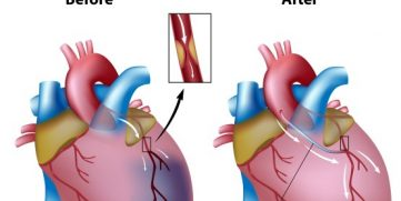 Heart Bypass Surgery Explained In Incredible Pictures