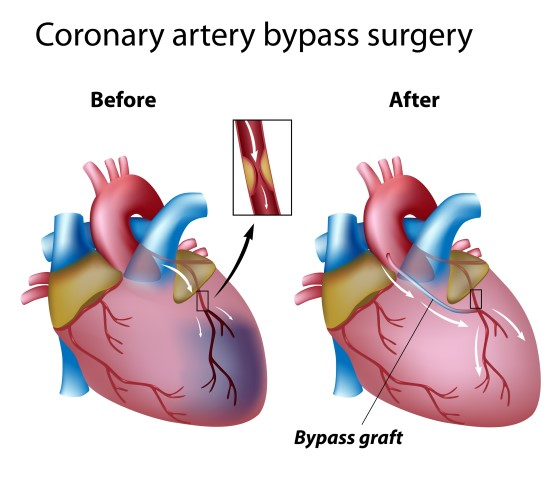 Heart bypass surgery explained in incredible pictures myheart ccuart Image collections