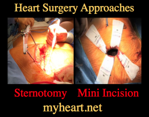 sternotomy vs. mini incision open heart surgery