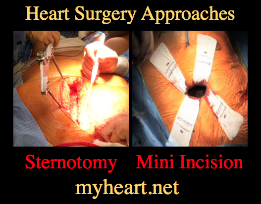Open Heart Surgery – Incredible Picture Guide! • MyHeart