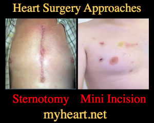 open heart surgery approaches scars