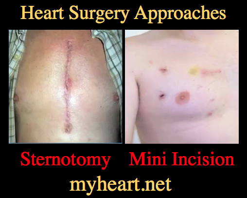 Surgical wound infection following heart surgery