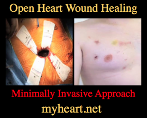 open heart wound healing minimally invasive