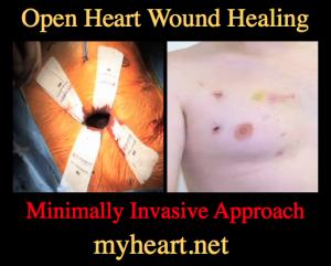 open heart wound healing minimally invasive