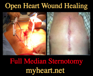 open heart wound healing sternotomy