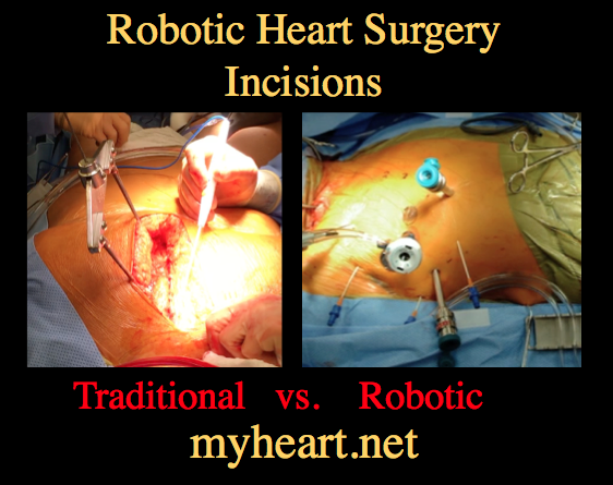 robotic-heart-surgery-incisions