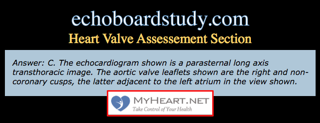 echo-boards-questions-heart-valve-disease-question-b