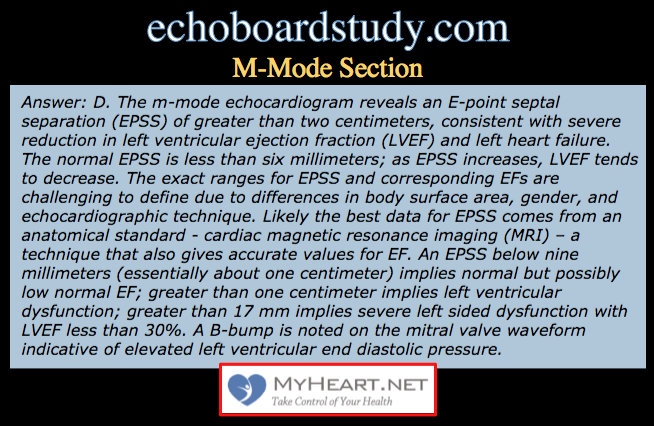 The Echo Board Exam Everything You Need To Know To Pass Myheart