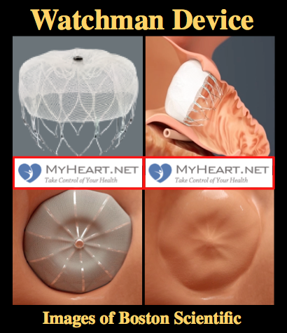 watchman-device-pictures