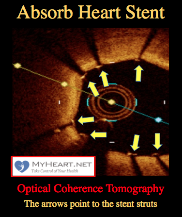 absorb-heart-stent-seen-by-optical-coherence-tomography