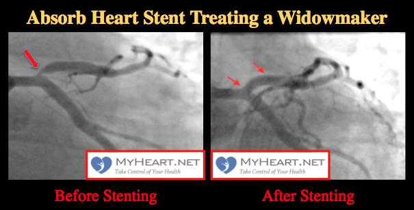 absorb-heart-stent-treating-a-widowmaker-heart-blockage