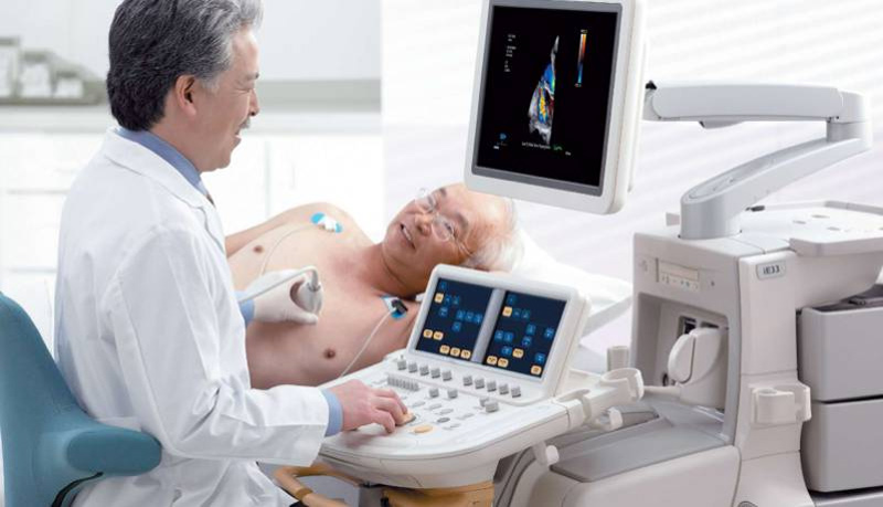Read This Before Getting an Echocardiogram