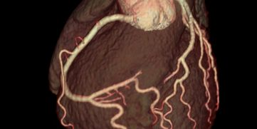 WHAT DOES CARDIAC CT SHOW?