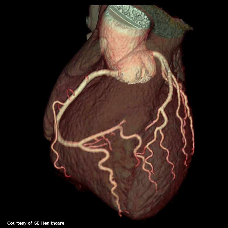 What Does Cardiac Ct Show Myheart