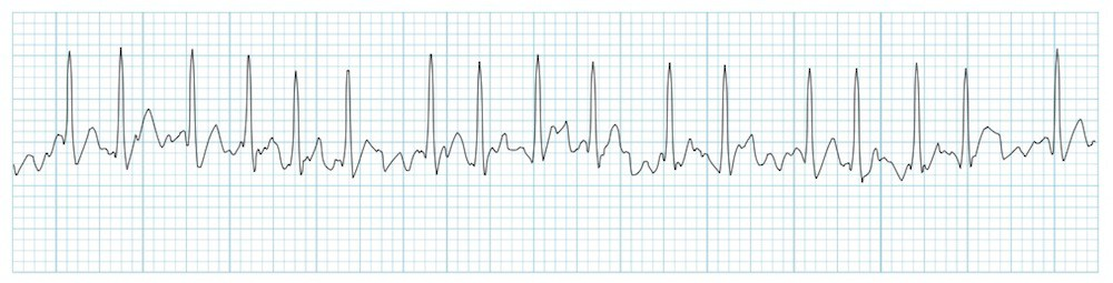 What goes into the treatment of atrial fibrillation?